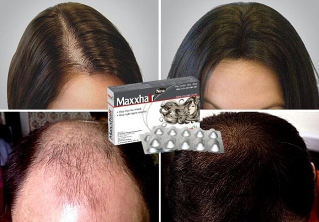Khảo sát thuốc Maxxhair trên những người hói đầu và kết quả tuyệt vời