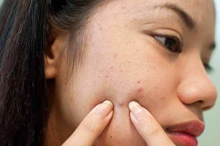 Chỉ nên nặn mụn khi bạn am hiểu về Skincare và biết chăm sóc da